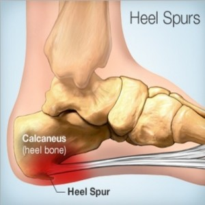 Heel Pain Treatment In Pasadena Dr Allen Massihi Podiatry Glendale Heel Pain Treatment Heel Pain Foot Pain Foot Pain Doctor Foot Pain Specialist Heel Pain Causes Foot Doctor Glendale Foot