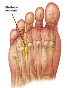 how to fix a pinched nerve in toe